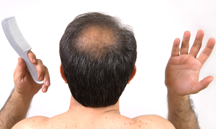 Baldness-Home-Remedies